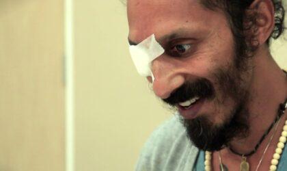 Kevin-Naidoo-Jaskra-który-poddał-się-komórkom-macierzystym